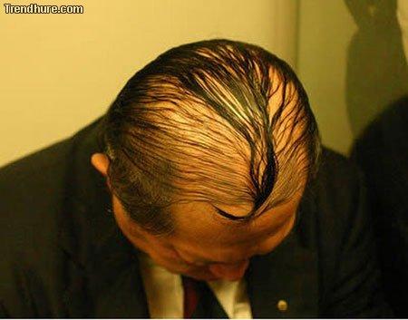 Glatze verstecken
